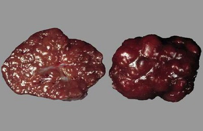Узелковая гиперплазия