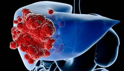 lechenie-raka-pecheni-v-izraile