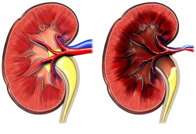 Реноваскулярная гипертония