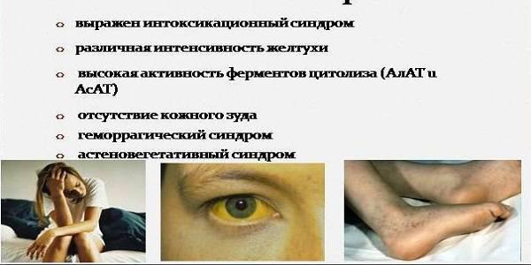 Клиническая картина синдрома цитолиза