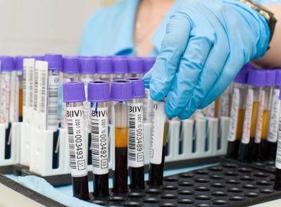 Анализы на биллирубин