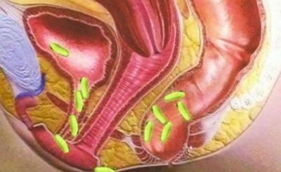 Бактерии в мочевыводящих путях