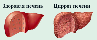цирроз