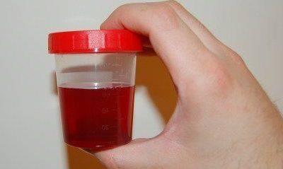 Гемоглобинурия