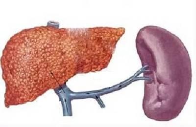 Изменения органов