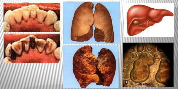 Здоровые органы и органы курца