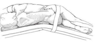 Люмботомия почки