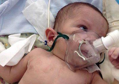 Операция новорожденному
