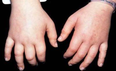 Отечность рук