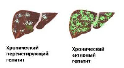 персистирующий гепатит