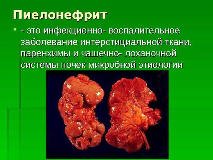 Что такое пиелонефрит