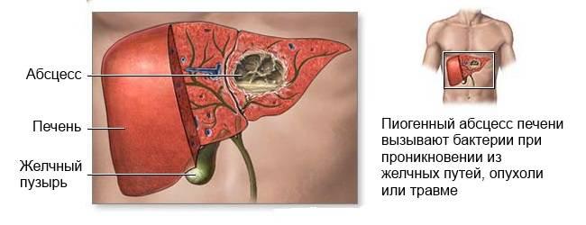 Причины пиогенного абсцесса печени