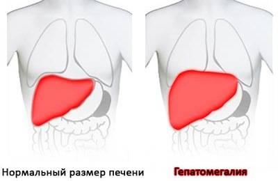 Пример увеличенного органа