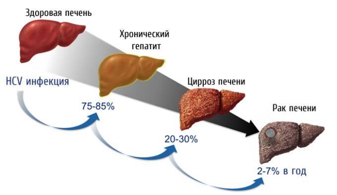 Риск цирроза печени