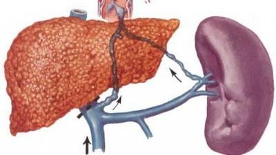 гепатолиенальный синдром