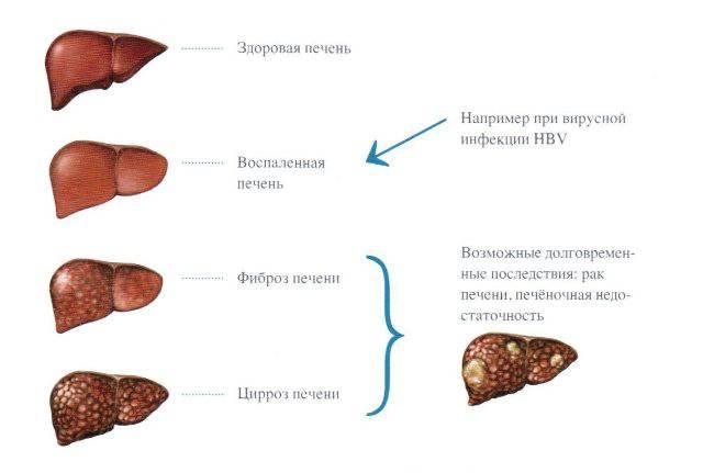 Последствия Гепатита Б