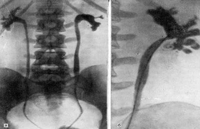 Односторонний уретерогидронефроз