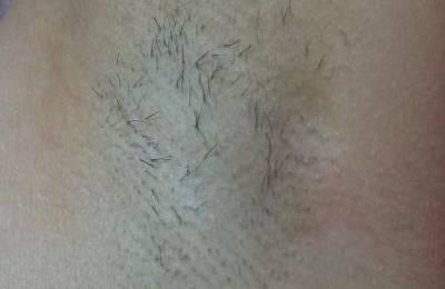 Выпадение волос в области подмышек