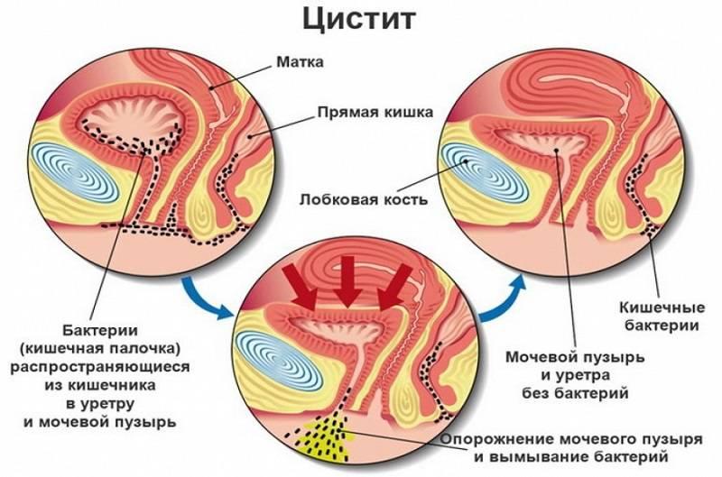 Схема мочевого пузыря