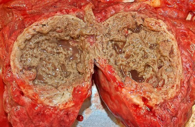 Злокачественная этиология опухоли