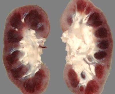 Подострый гломерулонефрит