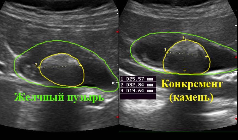 лечение от паразитов у беременных