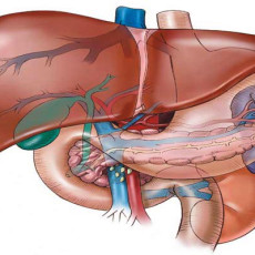 Метастазы печени при раке кишечника