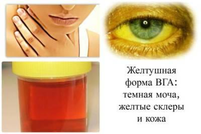 желтуха