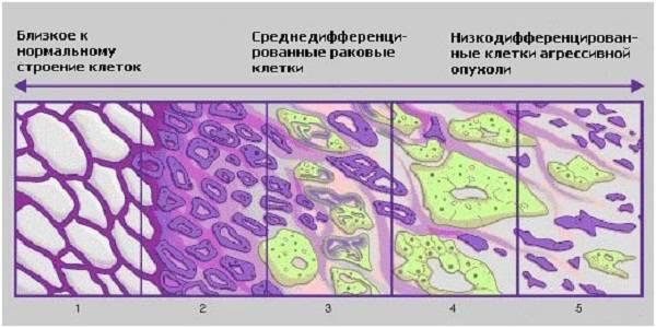 Дифференцировка рака