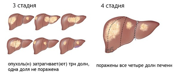 III и IV стадии рака печени