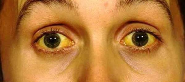 gejala-dan-cara-mengobati-penyakit-kuning-secara-alami
