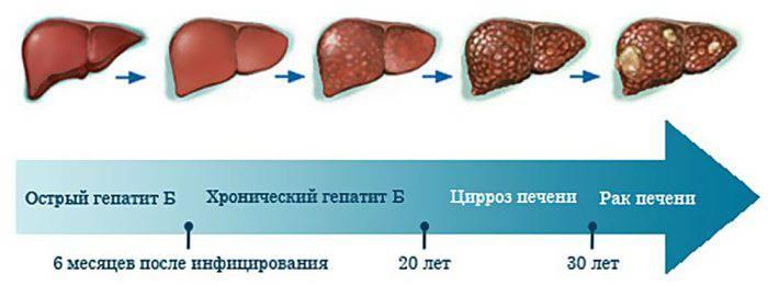 Стадии заболевания гепатита В