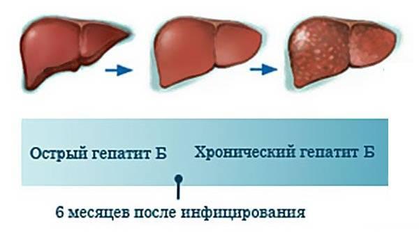 Острый и хронический гепатит Б
