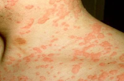 аллергия на антибиотики амоксициллин