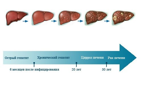Последствия острого гепатита