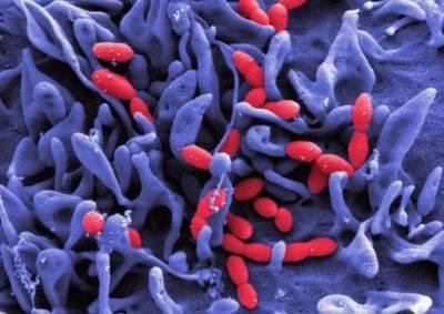 аллергия на бисептол фото