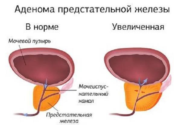 Секс с пьяными. Домашнее Русское Порно.