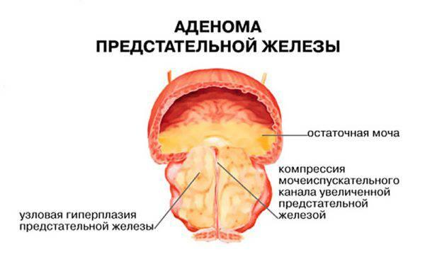 Методы и средства для лечения простатита