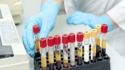 Анализ крови на иммунологию