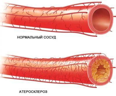 Выраженный атеросклероз