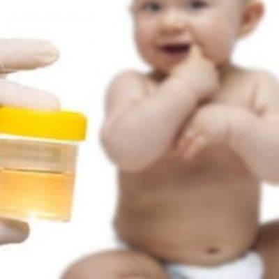 У ребенка белок в моче