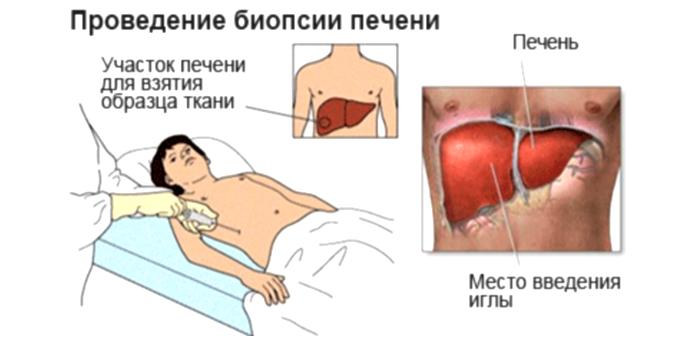 Проведение биопсии печени