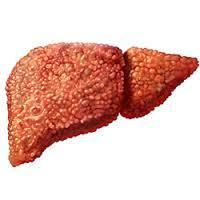 мелкоузловой цирроз печени
