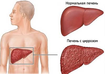 Здоровая печень и цирроз
