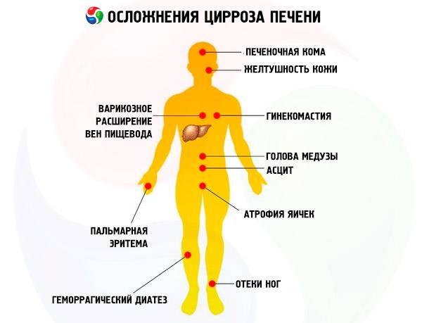 Алкогольный цирроз печени как умирают