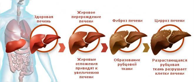 Стадии поражения печени