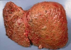 декомпенсированный цирроз