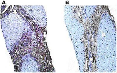 Обратимый фиброз печени у пациента с хроническим гепатитом В