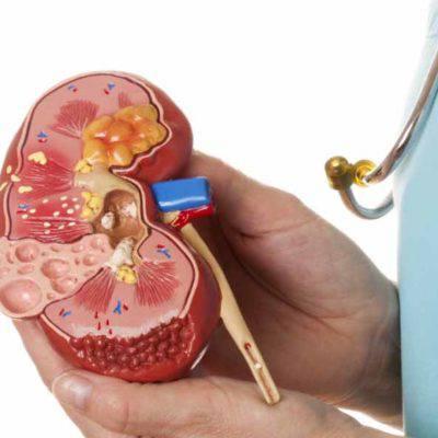 Хронический гломерулонефрит