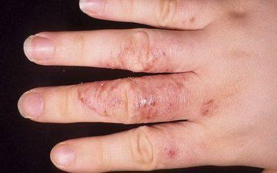 Микоз кожи